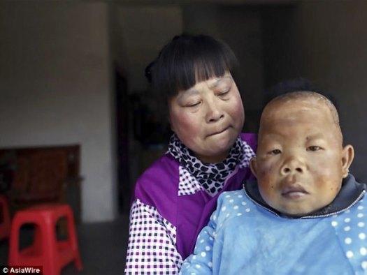 Su madre, Chu Xiaoping, de 52 años (en la fotografía que sostiene a Tianfang), dijo que su hijo dejó de crecer entre los dos y los tres años y que su inteligencia también dejó de desarrollarse.