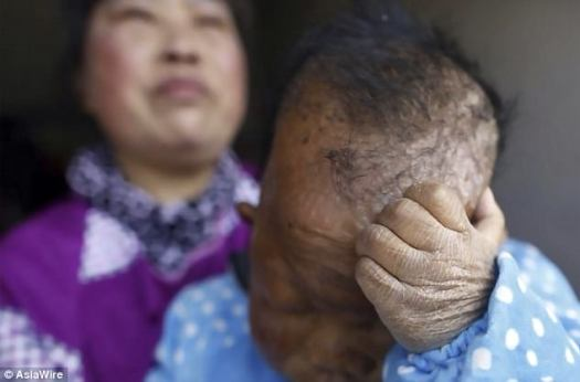 La piel de Tianfang comienza a agrietarse cuando hace frío.  Él y su madre viven en la aldea Wangfan del condado de Yuexi en la provincia de Anhui, este de China.