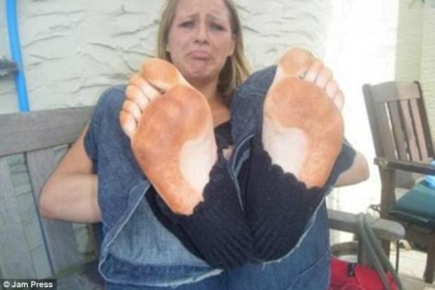 ¡Ay!  Esta mujer se quedó con alimentación de naranja después de unos contratiempos de bronceado bastante desafortunados