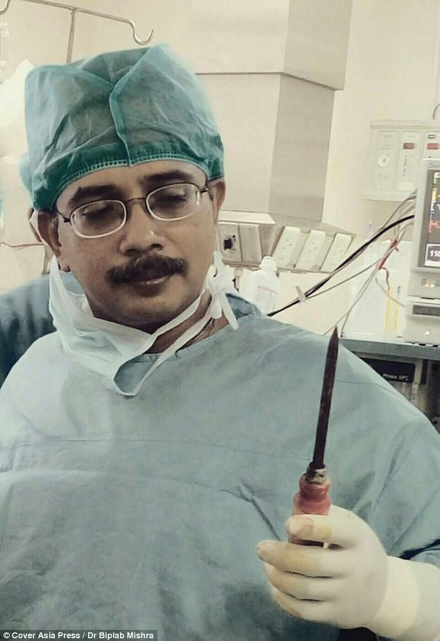 It took surgeon Dr Biplab Mishra (pictured) and four other doctors one hour to remove the pick