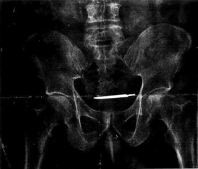 Glenford Turner, 61, of Bridgeport, Connecticut,is suing after a five-inch scalpel was left in his abdomen for four years following surgery causing severe pain (pictured is his X-ray, showing a large, sharp knife stuck inside the patient)