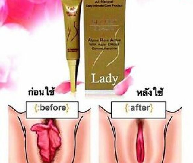 Lady Secreto Suero Resolver Problema Suelto Vagina Leucorrhoea