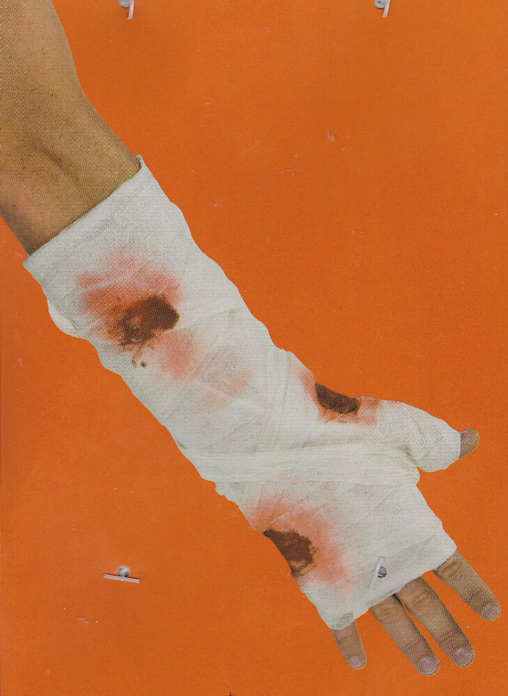 BLOODY ARM BANDAGE COSTUME PROP Creepy Gross Men Creepy Wound Sore Makeup NEW EBay