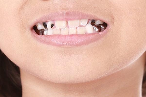 預防蛀牙除了少吃糖 還有2種有效方法   氟錠   含氟牙膏   兒童   大紀元