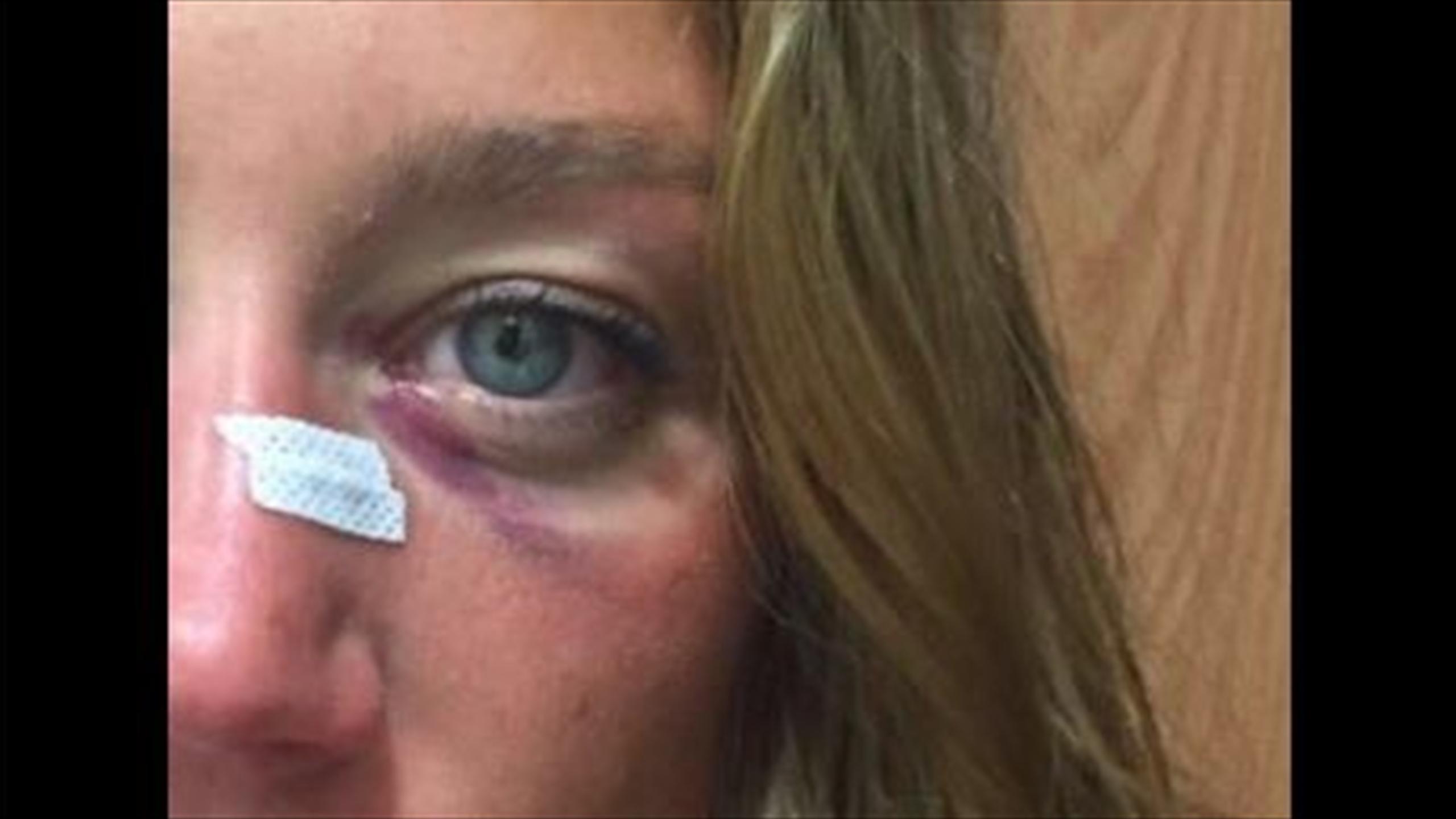 Resultado de imagen de ojo morado