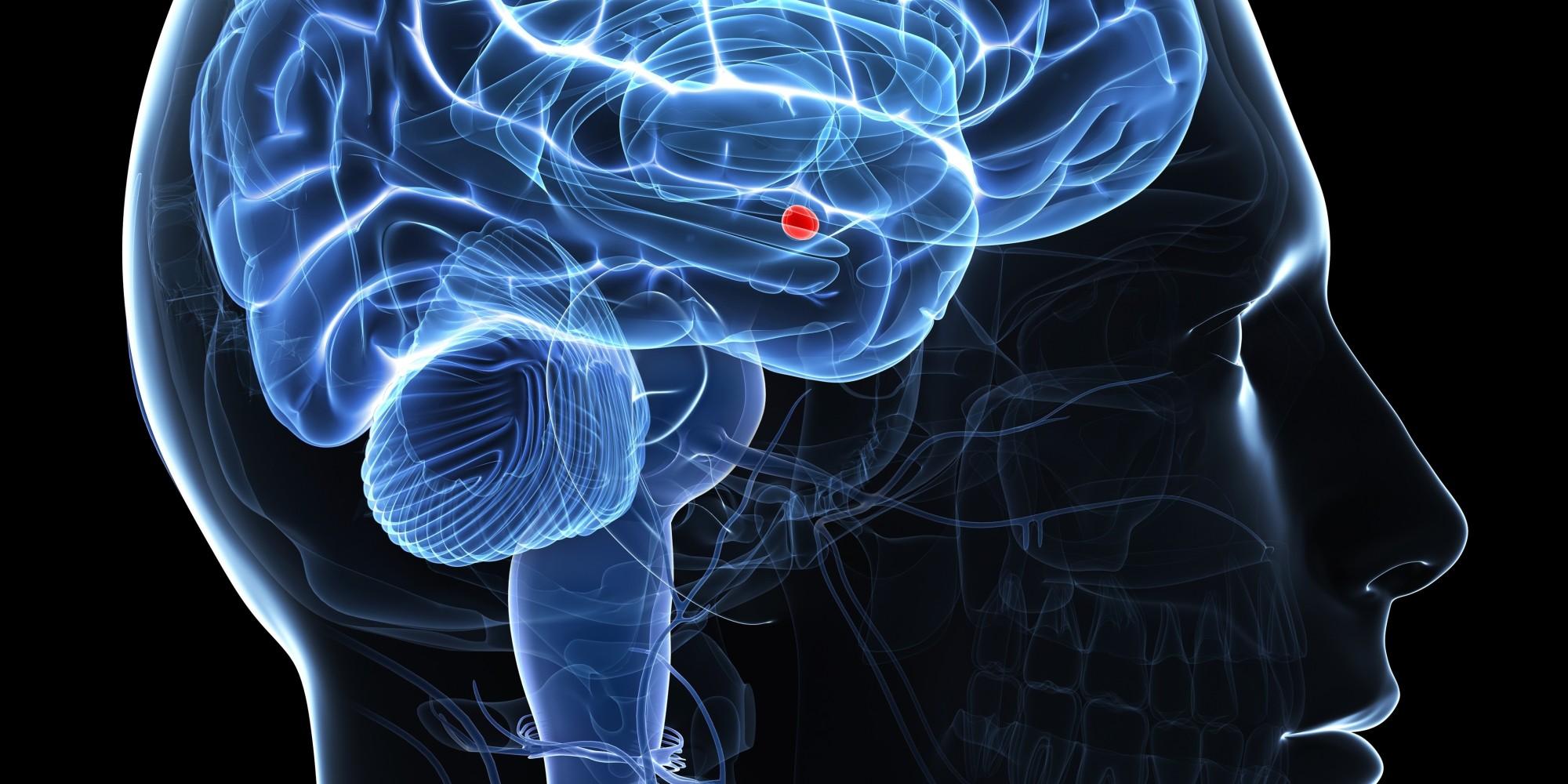 Brain Surgery To Remove Amygdala Leads To Woman S Hyper Empathy