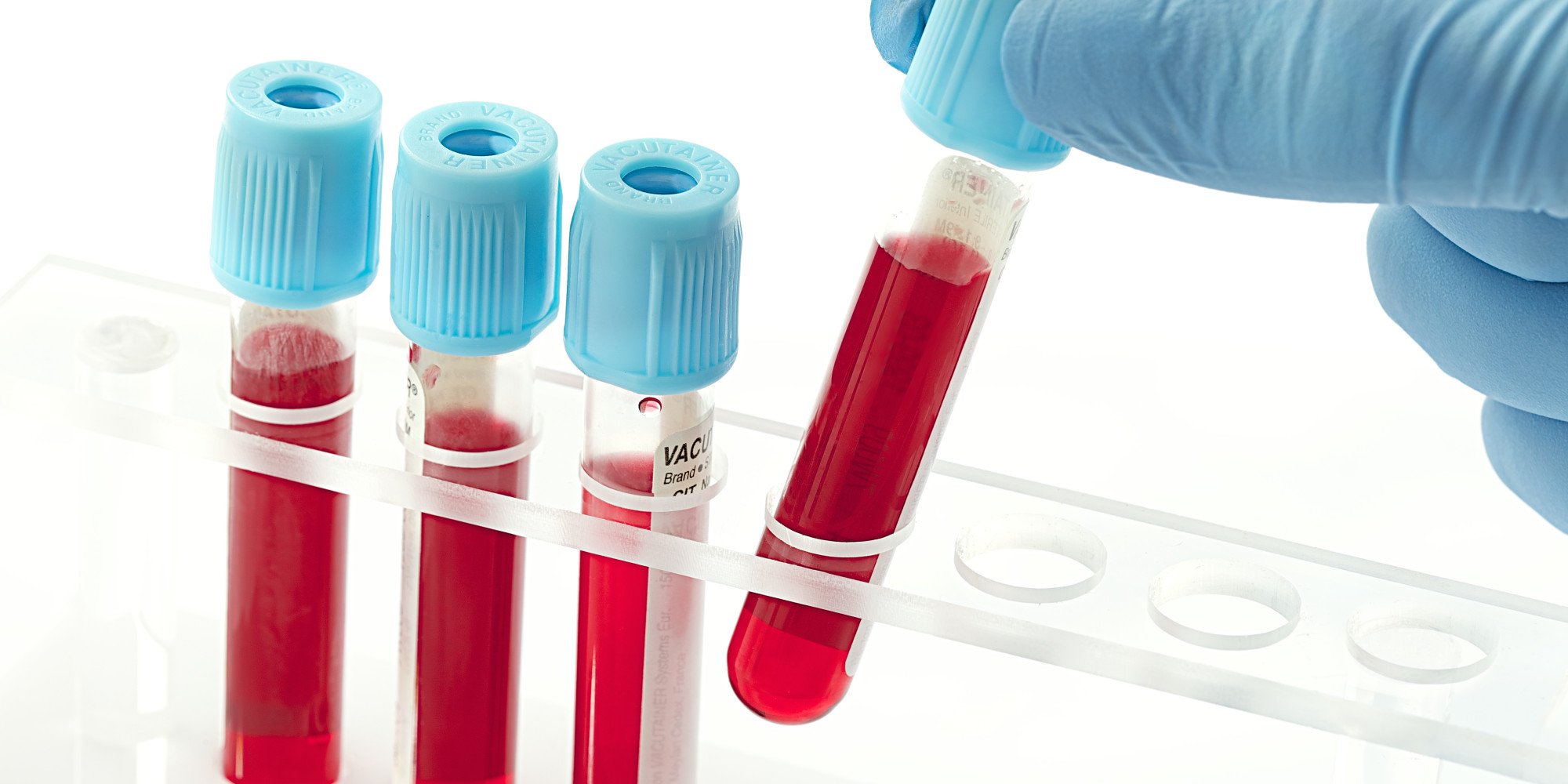 Blood Test That Allegedly Predicts Suicide Risk Only Looks Promising In The Media Not In