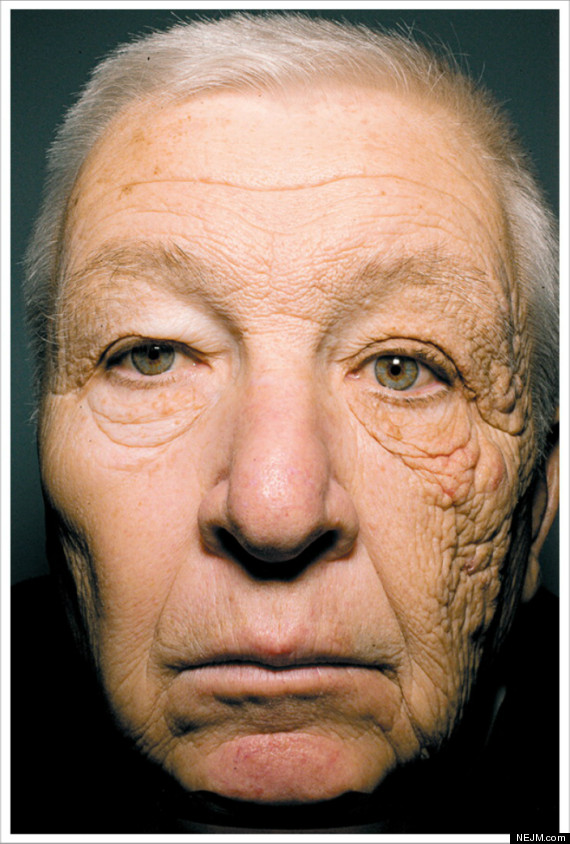 bill mcelligott sun damage