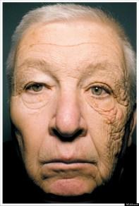 bill mcelligott sun damage