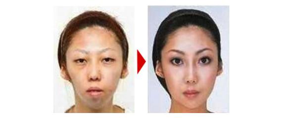 L'épouse dont il a divorcé, avant et après chirurgie