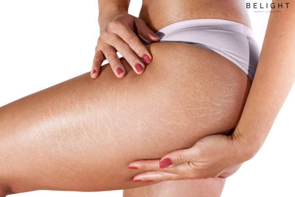 Stretch-marks-on-woman-s-thighs-and-buttocks