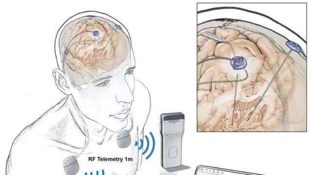 fe76f105de5fe79f6ce780c8d92b2682 In a First, People Had Their Brain Activity Tracked Remotely During Everyday Life | Gizmodo