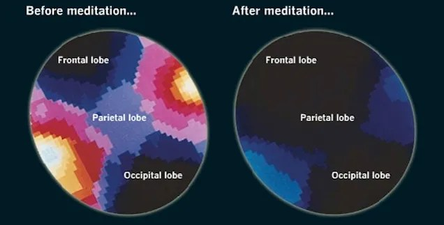What Happens to the Brain When You Meditate (And How it Benefits You)