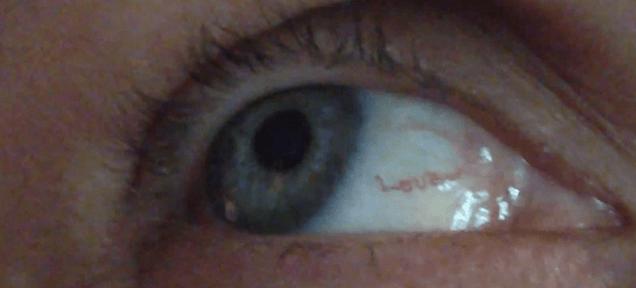 Woman has 'love' written with a blood vessel in her eye