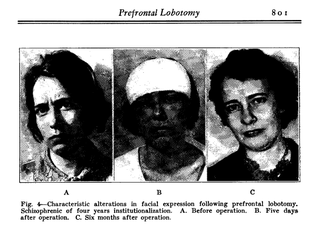 The strange, sad history of the lobotomy