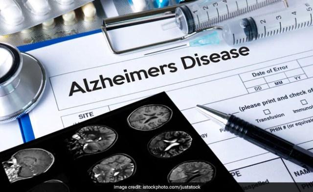 world alzheimers day 2017