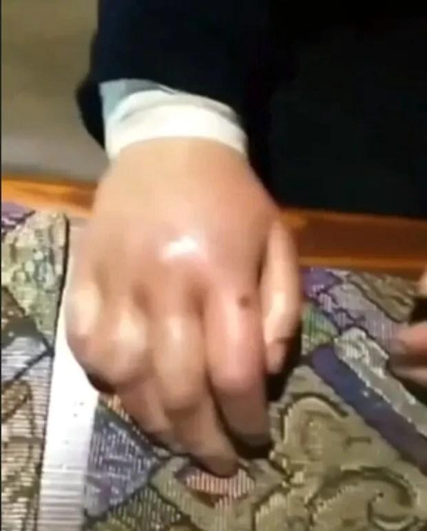 Сломали руку и насиловали: на Львовщине поиздевались над сиротой