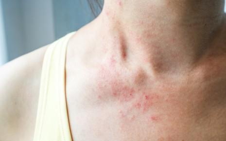 sonnenallergie polymorphe