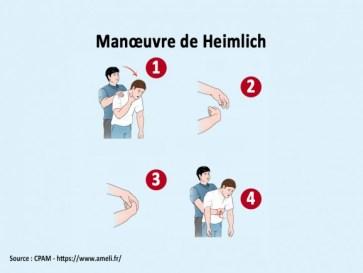Fausse route : manoeuvre de Heimlich