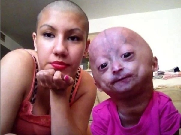 Mommy shaves her head to show support for her daughter with Progeria