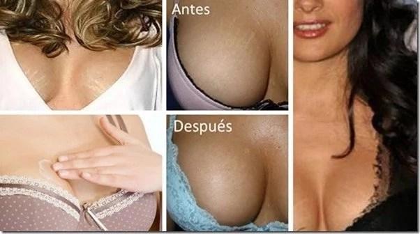 Encontramos la solución para las estrías en los senos, solo sigue estos 3 pasos así
