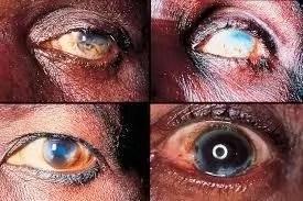 River Blindness Disease In Biu Local Government Area Of Bornu State