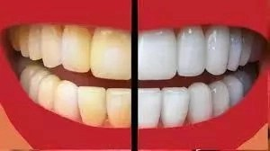 How To Whiten Your Teeth Using Home-Made Materials