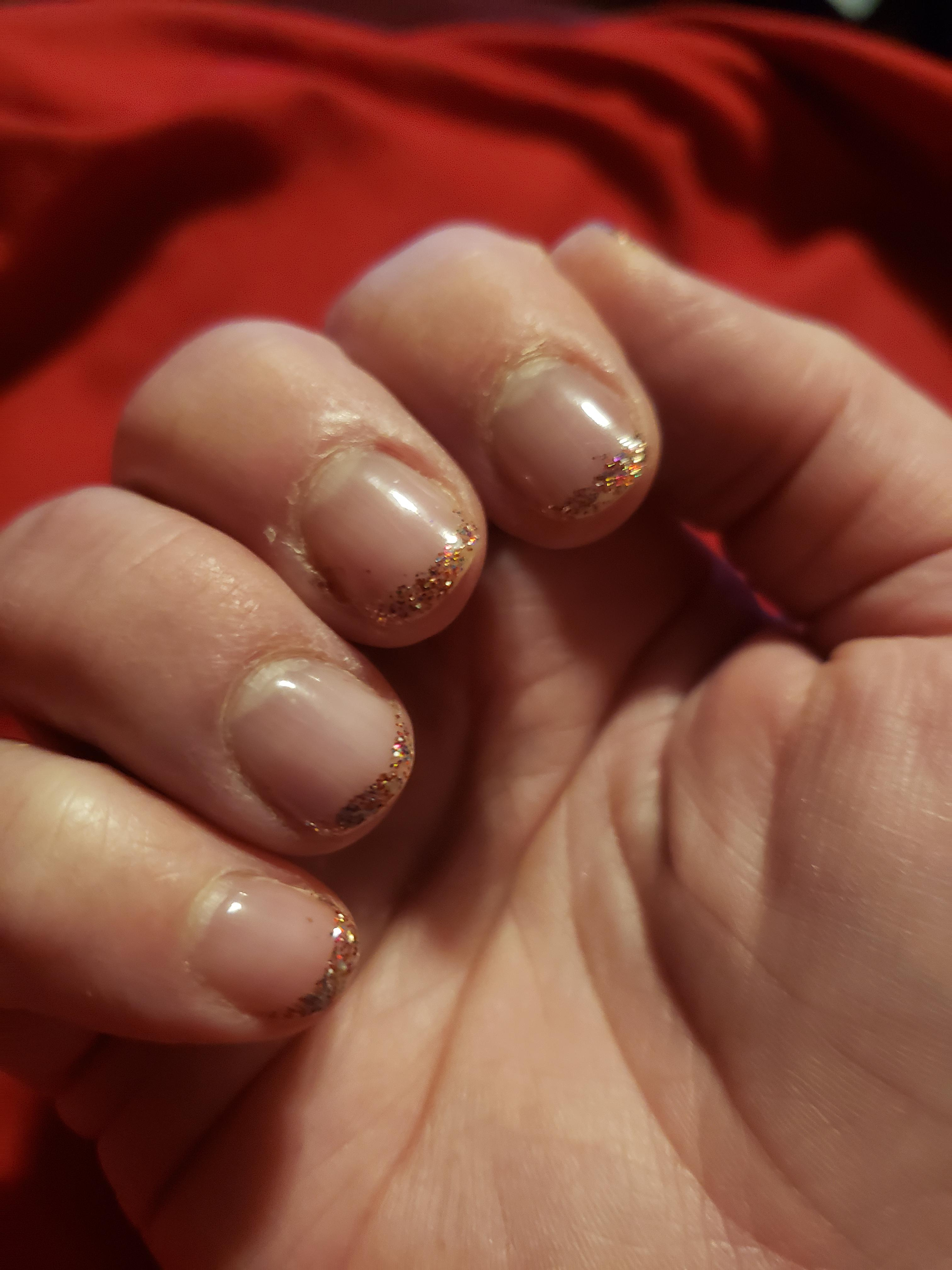Had To Remove My Acrylic D T Surgery Natural Nails With Clear