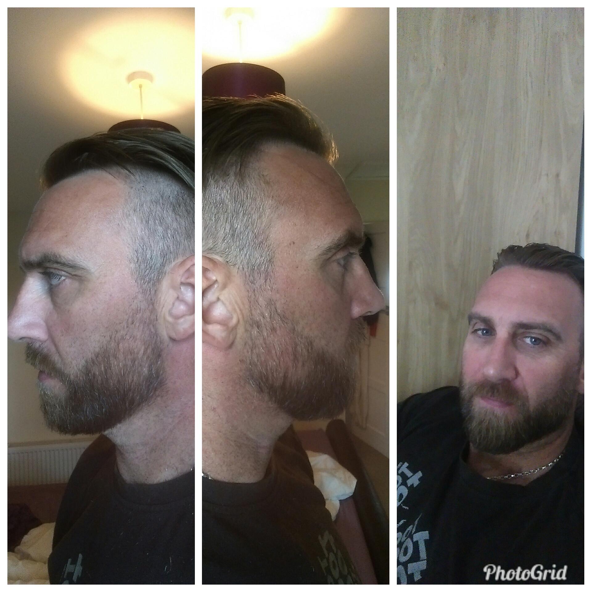 Weak Side Beards