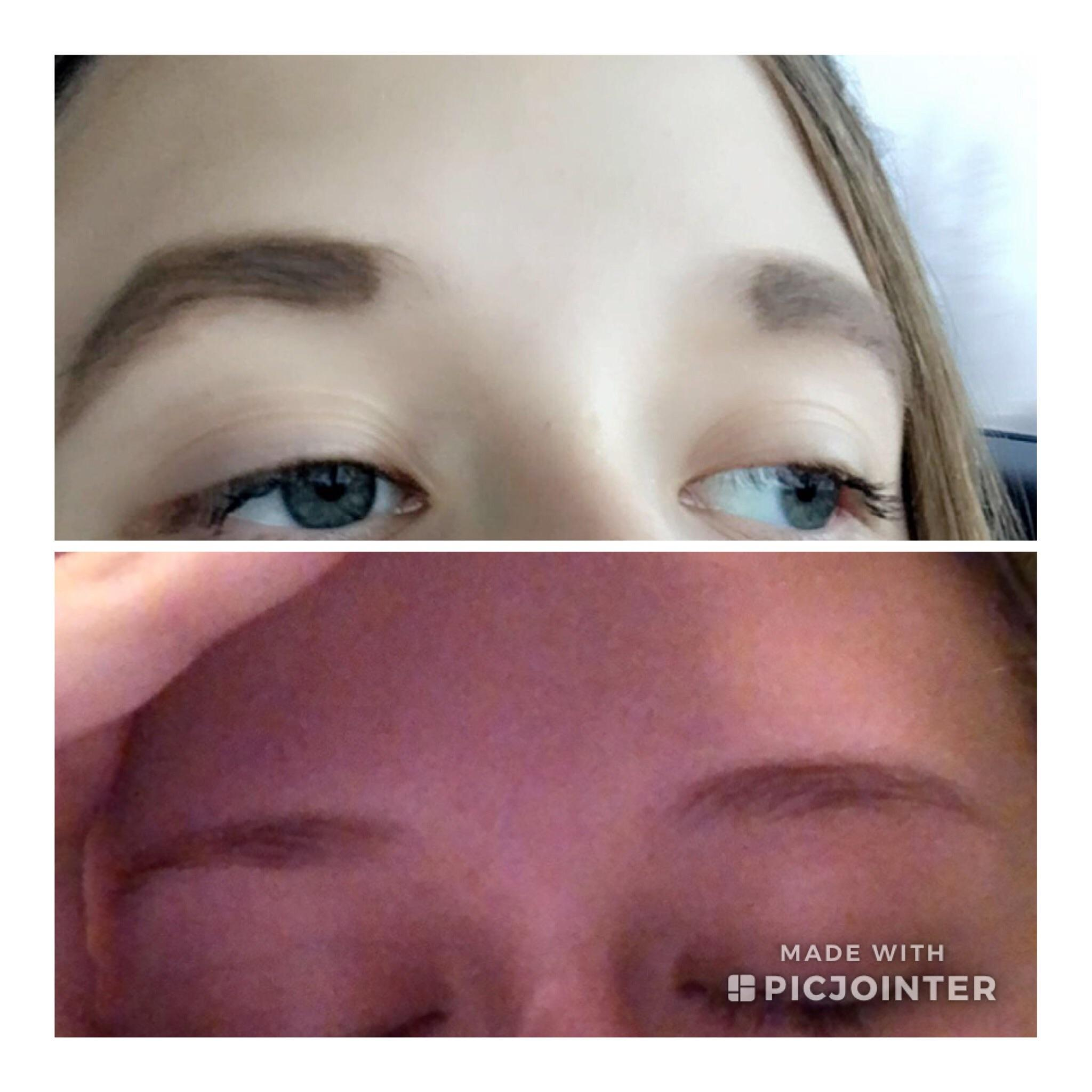 My Eyebrows 3 Years Ago Vs Now I Dye Them With Beard Dye My Friends Told Me My First Brows Were Good Awfuleyebrows