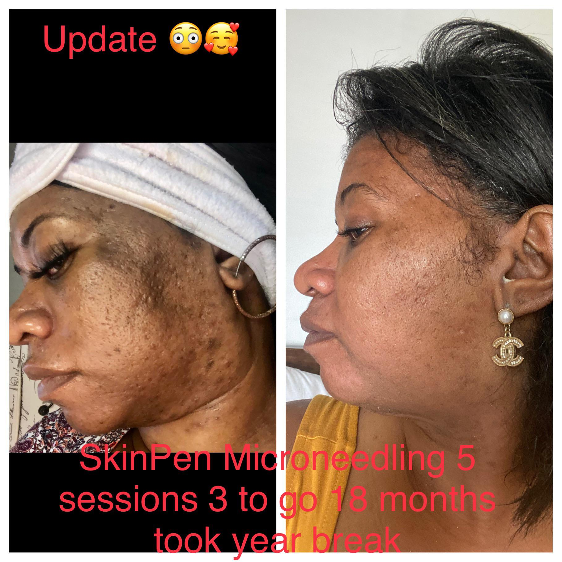 B A My Microneedling Journey Update Photo Hyperpigmentation And Severe Acne Scarring Skincareaddiction