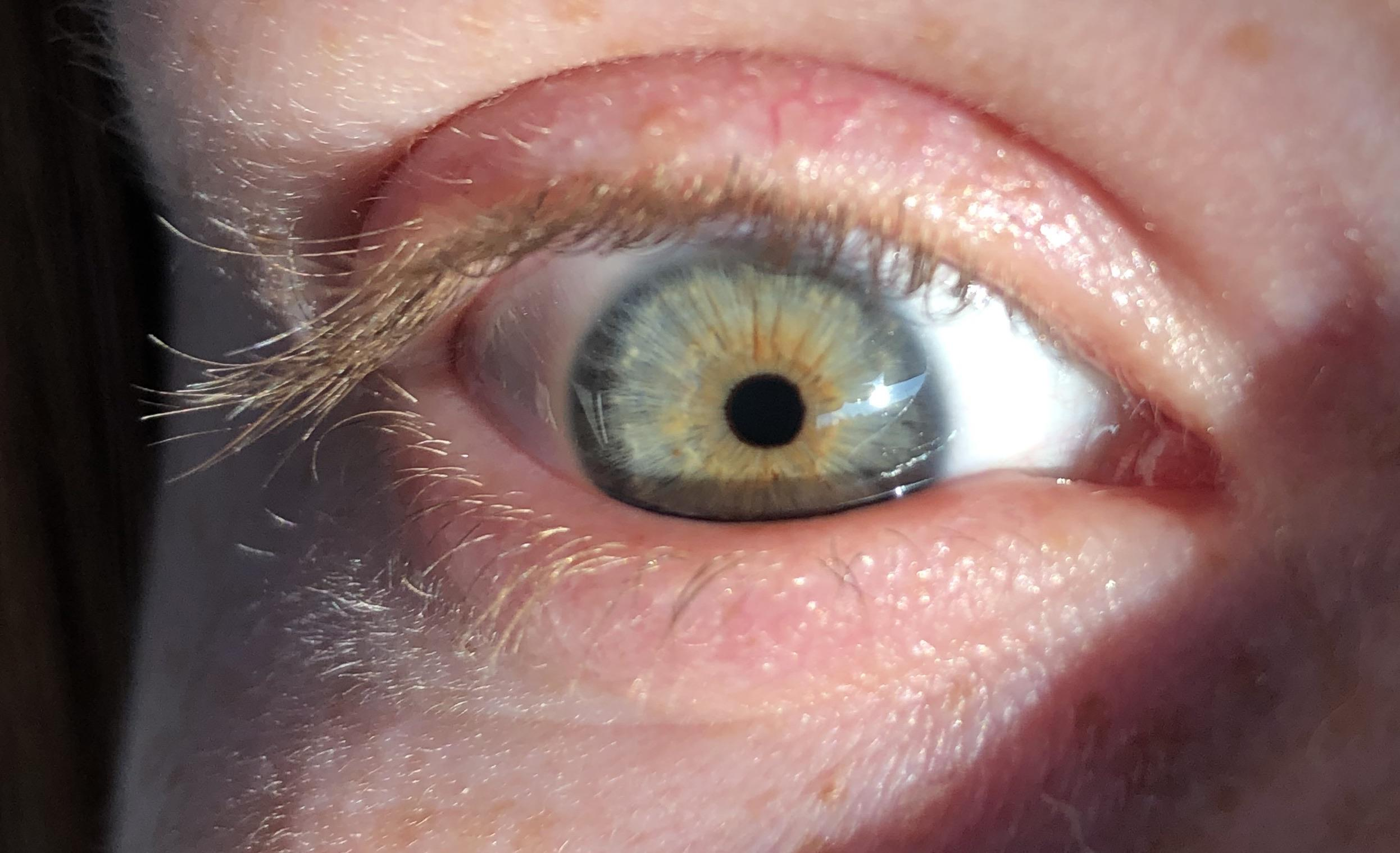 Can Anyone Find A Way To Describe My Eye Or Eye Color