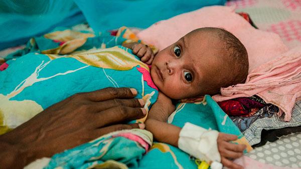 Dahir* tiene solo seis meses y está siendo tratado por desnutrición en el centro de estabilización que en Save the Children mantenemos en Borama.