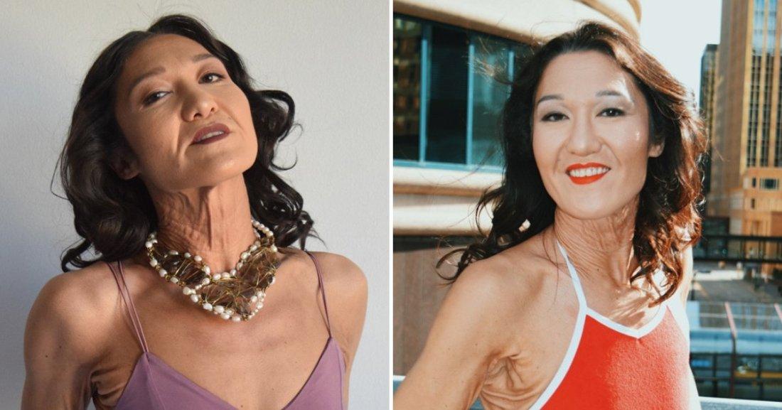 untitled design.png?resize=1200,630 - Une mannequin de 26 ans a une maladie rare qui lui donne une apparence physique beaucoup plus âgée