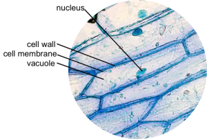 plant physiology  What anelles are in an onion cell