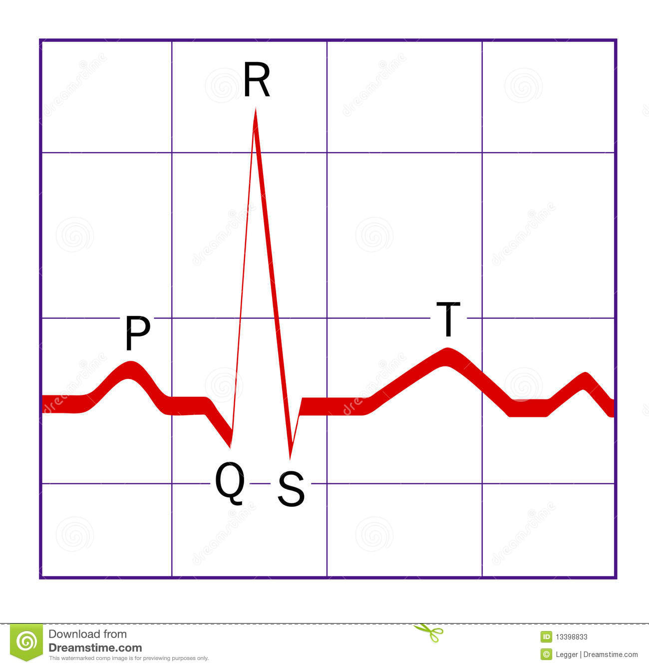 How To Draw An Ekg Tracing With Tikz