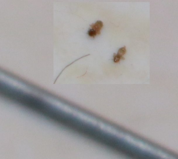 White Mites In My Kitchen Very Little White Bugs Anyone Knows What They Are Youtube Small Grey Bugs In House Architectural Designs I Have Tiny White Bugs In My Bedroom Www Resnooze Com