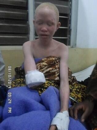 Em agosto de 2014, a adolescente Pendo Sengerema teve o braço arrancado para um ritual de magia negra em Tabora, Tanzânia