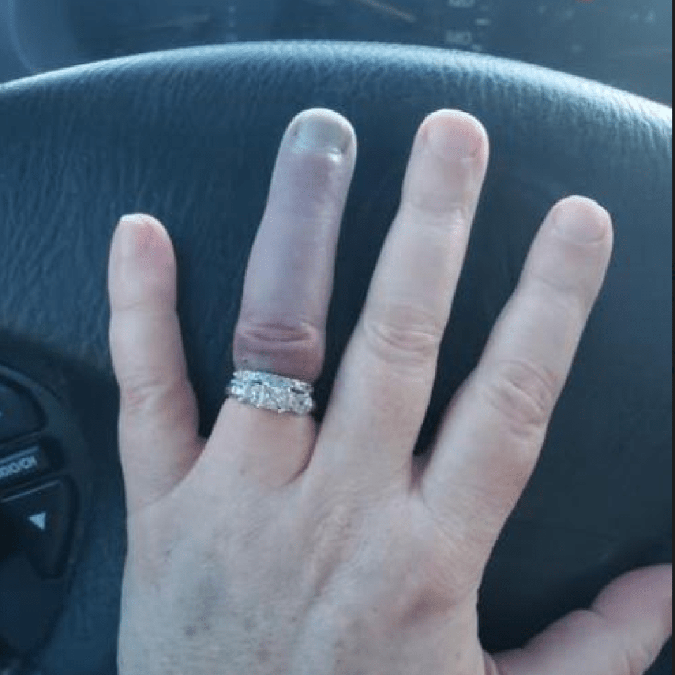 Woman Jams Wedding Ring On Her Finger And It Goes So Blue People Reckon She Ll Need It Amputated
