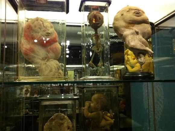 荷蘭Vrolik博物館 讓你見識到真正的美人魚長啥樣 - 每日頭條