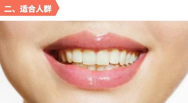 【科普】什麼是牙齒冷光美白?效果如何? - 每日頭條