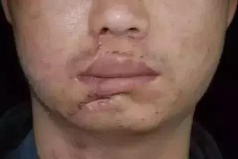 外傷造成的凹陷疤痕怎麼辦?該怎麼去除? - 每日頭條