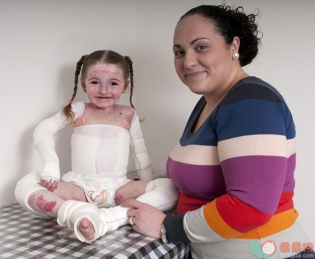 小孩燙傷後吃什麼恢復快? - 每日頭條