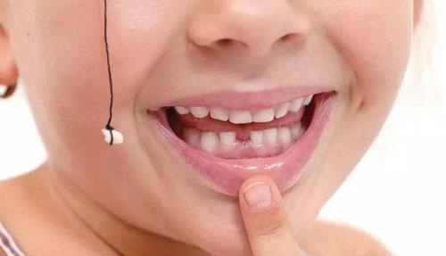 為什麼好多孩子的乳牙沒掉恆牙就長出來了?要注意這個牙齒問題 - 每日頭條