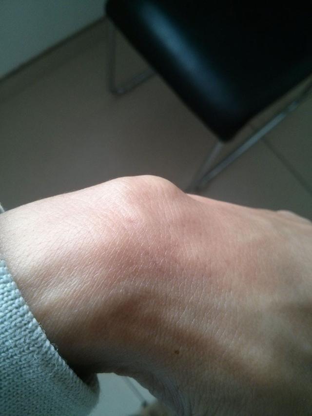 手腕部腱鞘囊腫切除手術怎麼要這麼貴? - 每日頭條