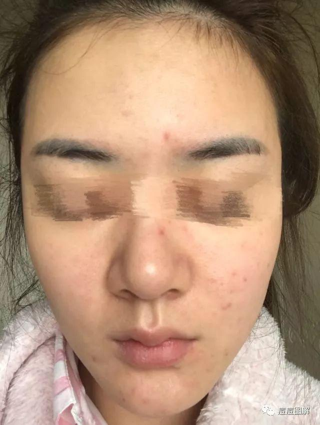 痘痘治療方法9:囊腫性痤瘡 黑頭粉刺 下巴長毛囊炎 - 每日頭條