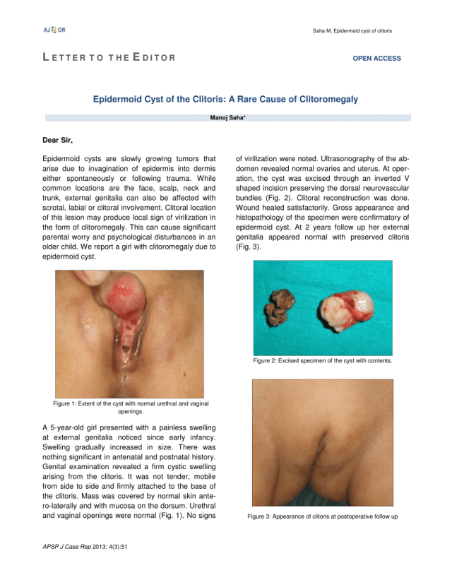Pdf Epidermoid Cyst Of The Clitoris A Rare Cause Of Clitoromegaly