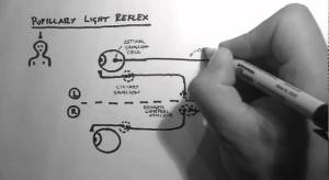 Reflexes 2  Pupillary Light Reflex  YouTube
