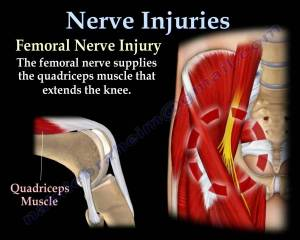 NERVE INJURIES,INJURY  Everything You Need To Know  Dr Nabil Ebraheim  YouTube