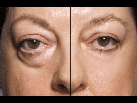 treatment of eye bags causes symptoms complications
